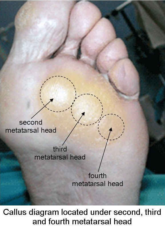 Callus diagram located under second, third and fourth metatarsal head