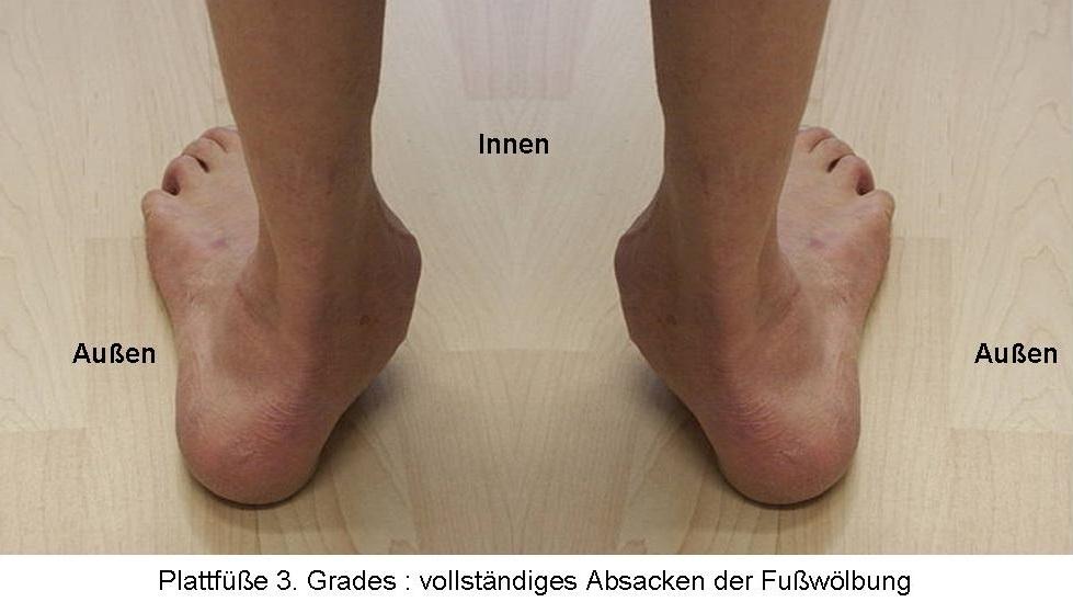 Plattfüße 3. Grades : vollständiges Absacken der Fußwölbung
