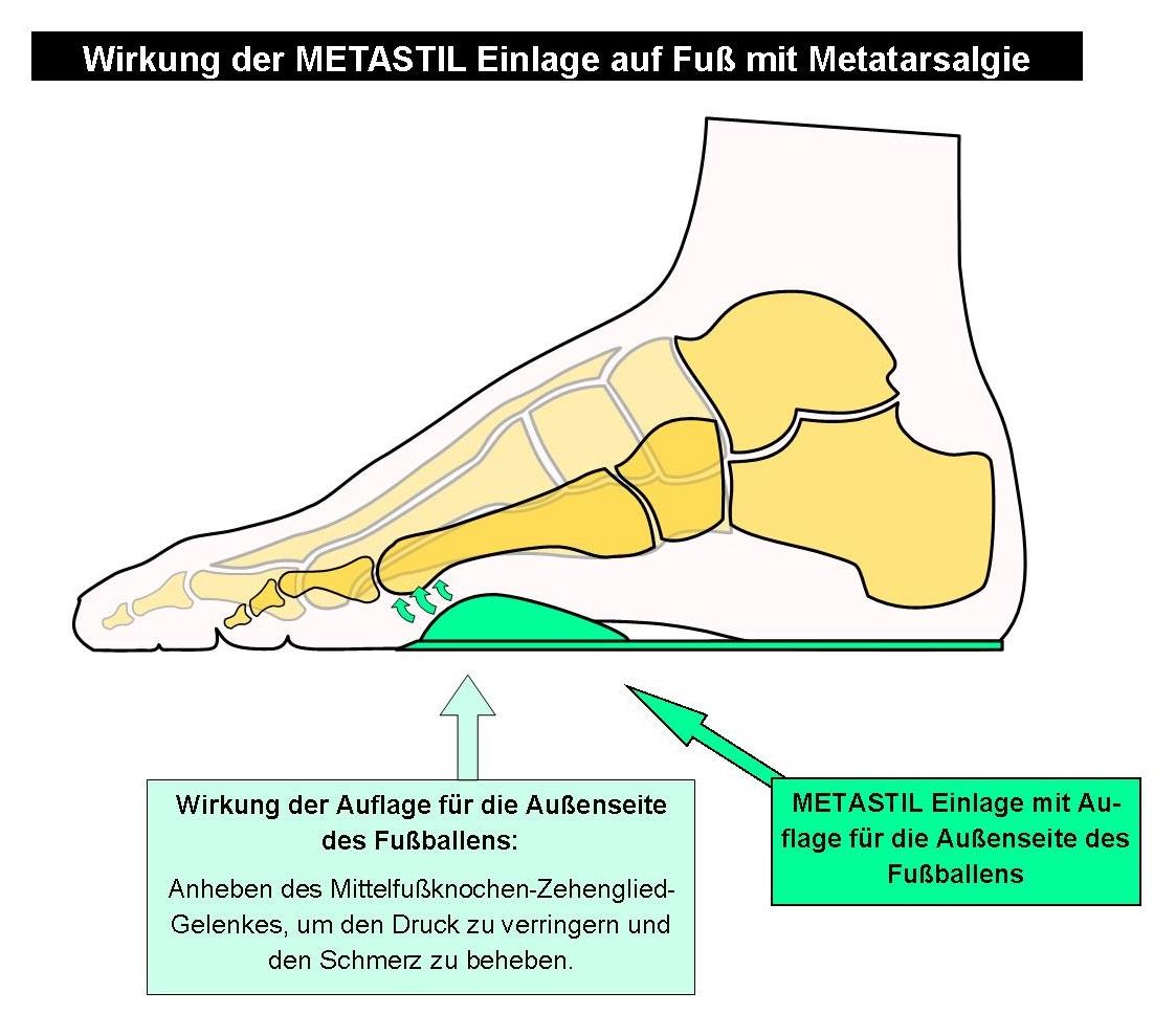 Skelettschema Fuß mit Metatarsalgien unterhalb der 5. Zehe mit METASTIL Einlage