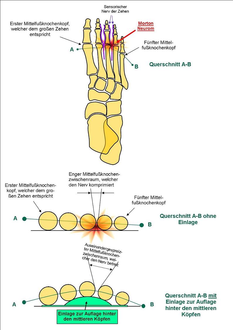 Schema des Morton Neuroms