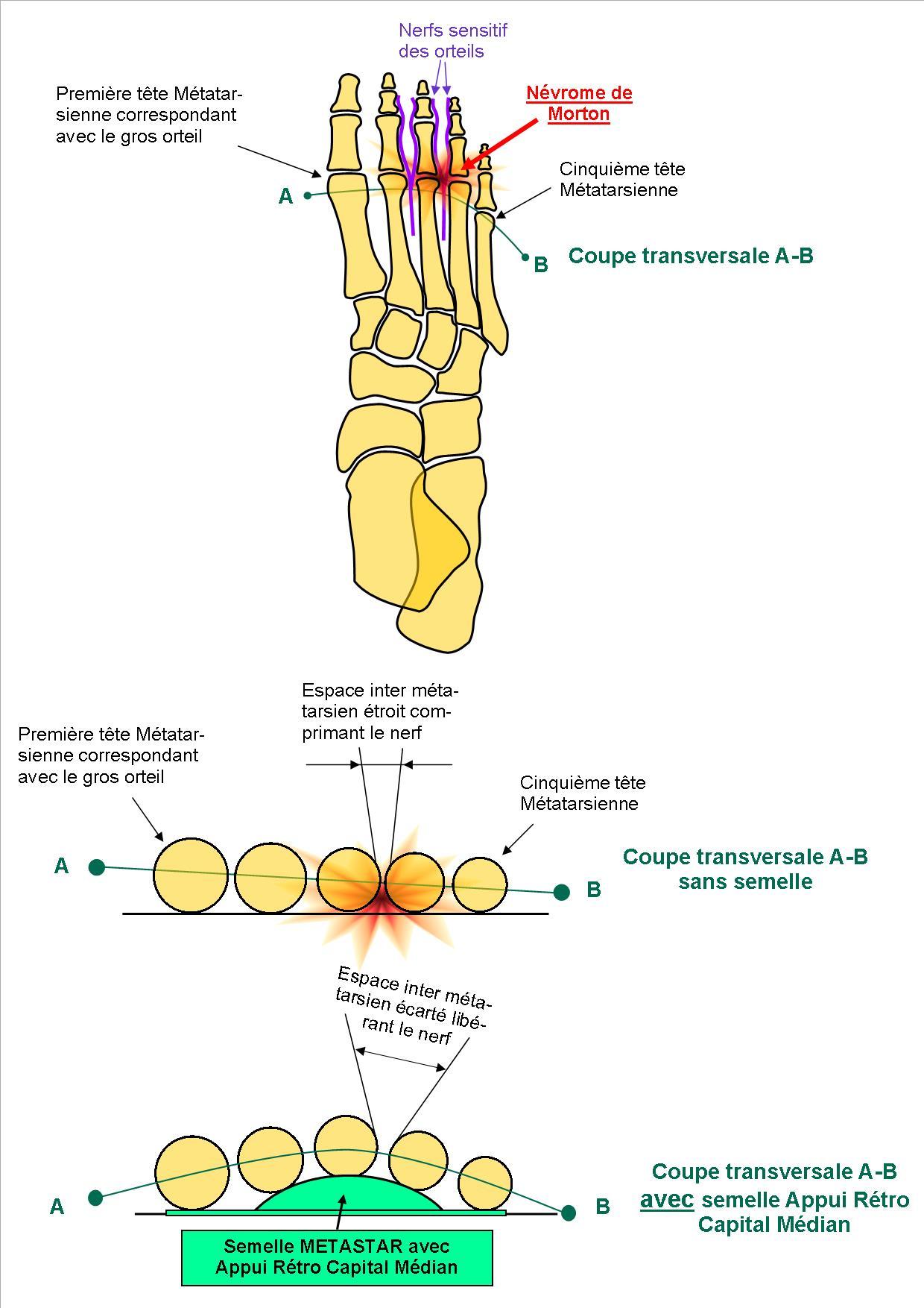 Schéma squelette du pied avec névrome de Morton