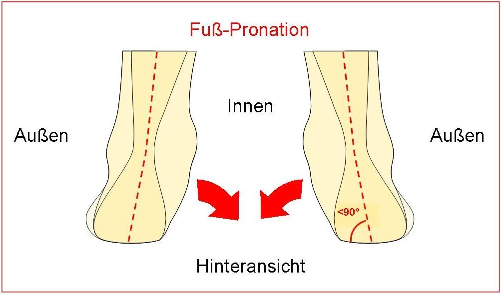 Schema  Fuß-Pronation