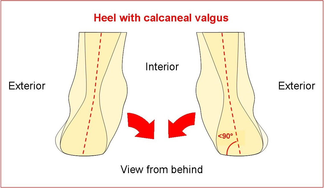Heel with calcaneal valgus