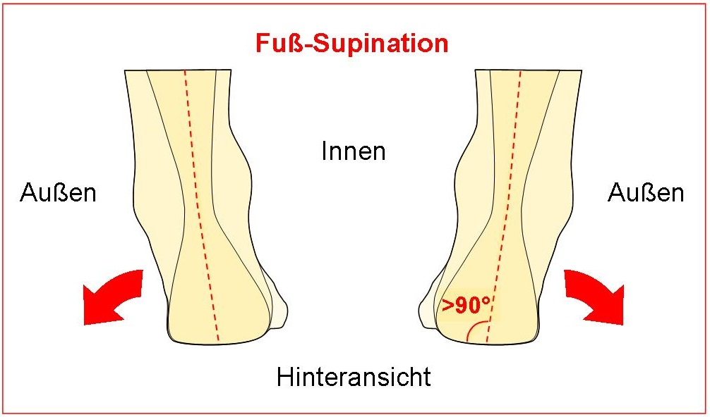 Fuß-Supination