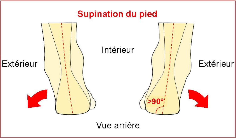 Schema Supination du pied