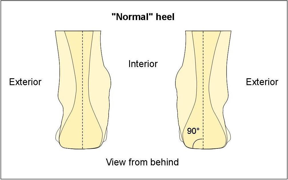 Normal heel