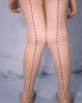 Beine mit Genu valgum