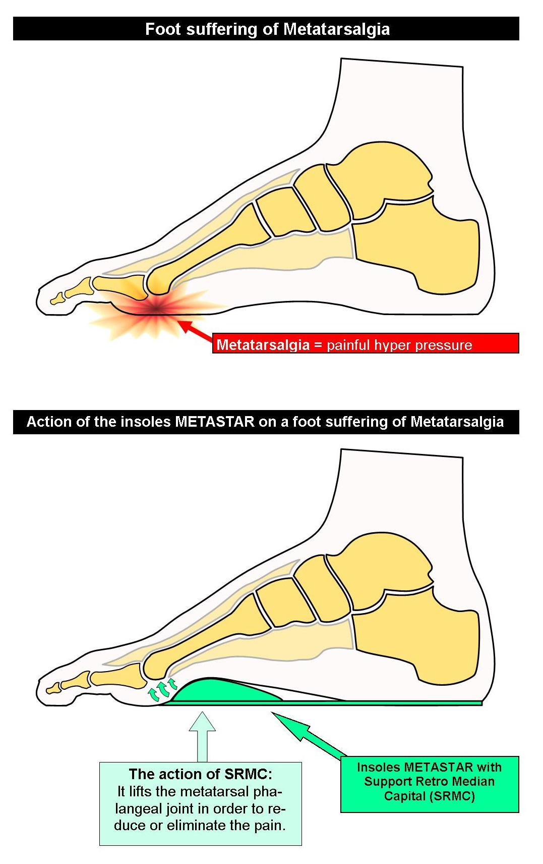 Median Metatarsalgia