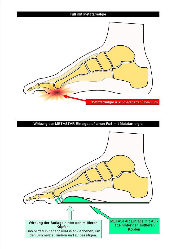 Schema Wirkung der METASTAR Einlage auf einen Fuß mit Metatarsalgie