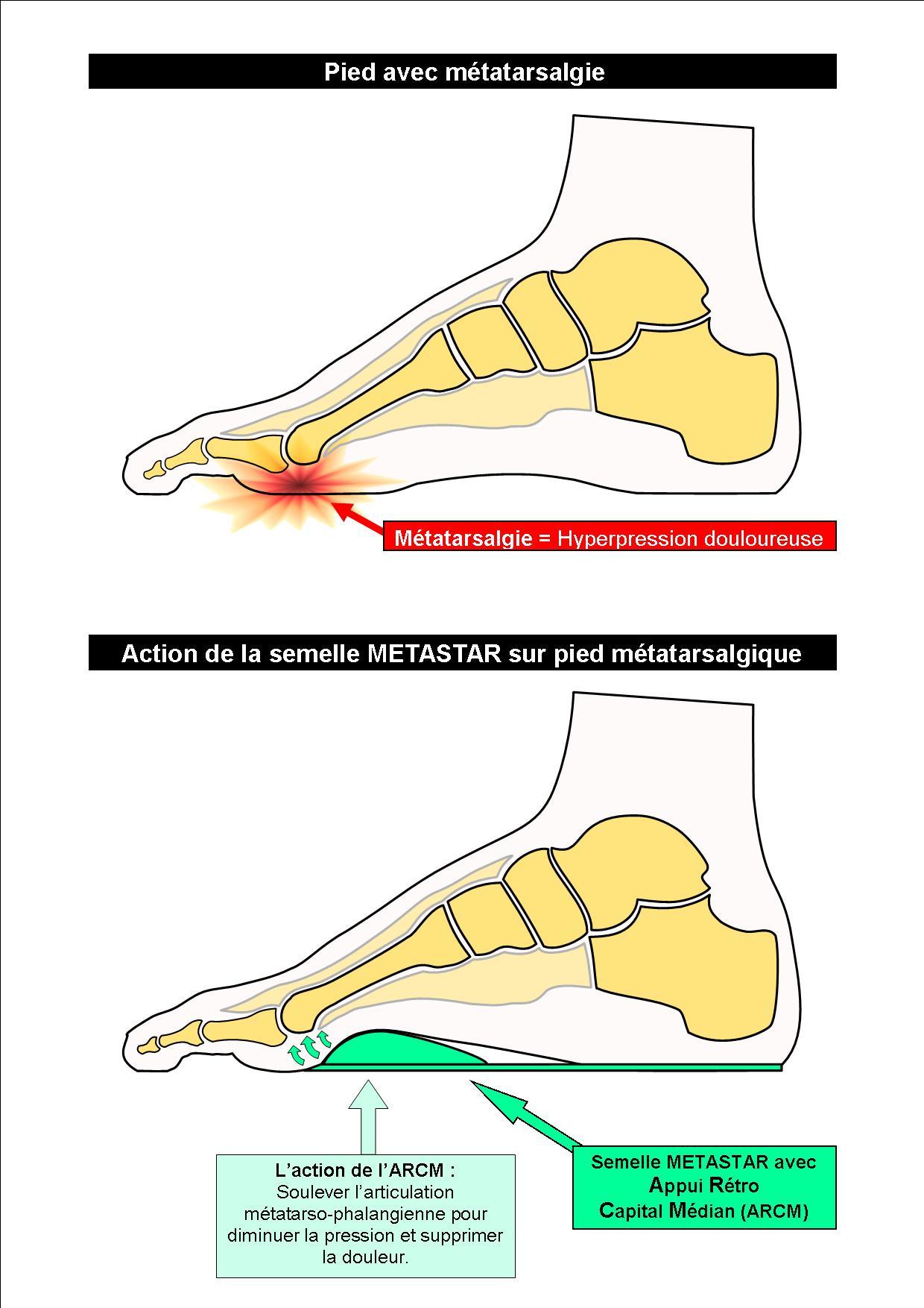 Schéma Action de la semelle METASTAR sur pied métatarsalgique