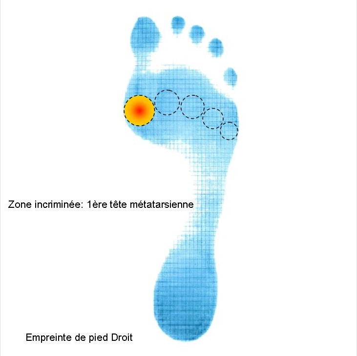 Zone de douleurs du 1er orteil