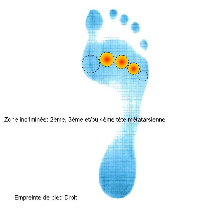 Emprinte pied avec zone douleurs sous 2, 3, 4ème têtes méta