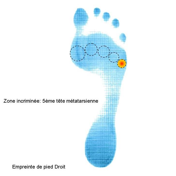 Empreinte pied avec zone douleurs 5ème tête méta