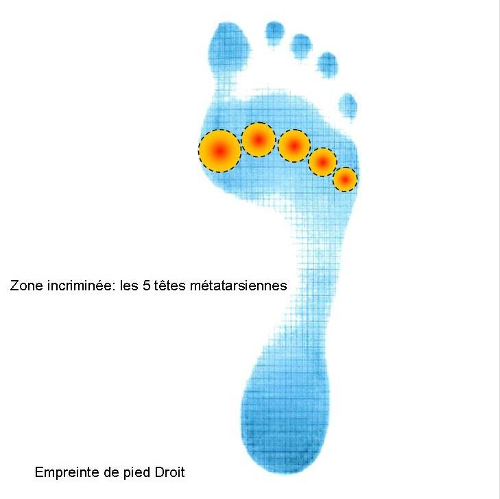 Empreinte pied avec zone douleurs sous les 5 têtes méta