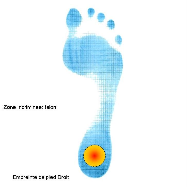 Empreinte pied avec zone douleurs sous talon