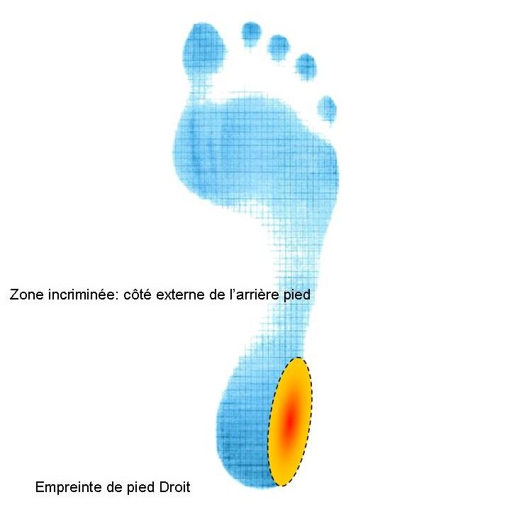 Empreinte pied avec zone douleurs côté externe du talon