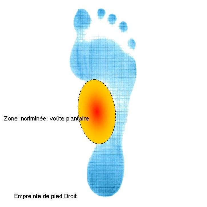 Empreinte pied avec zone douleurs sous la voûte plantaire